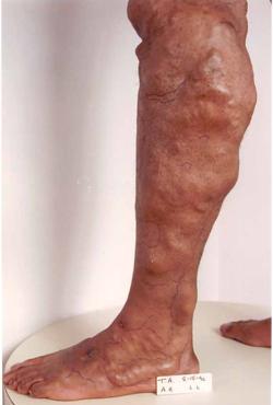 Нехирургическое амбулаторное лечение варикоза