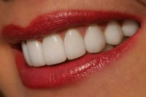 Как отбелить зубы?