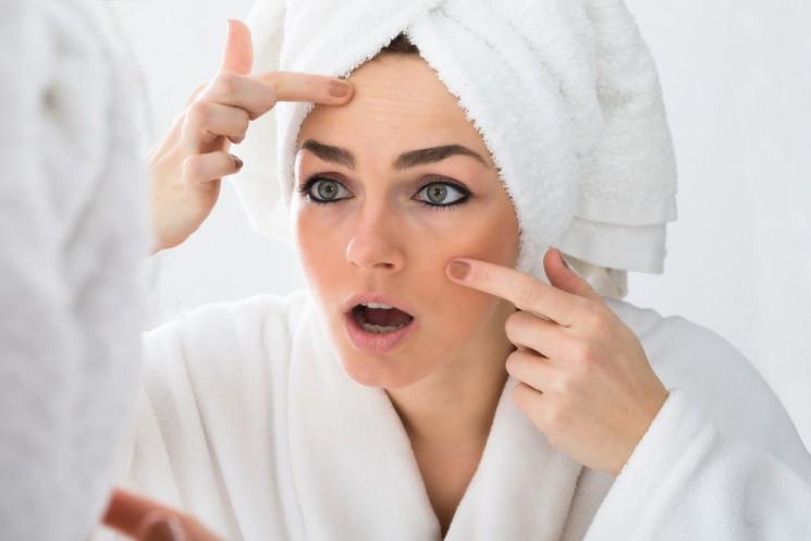 Уход за проблемной кожей в домашних условиях